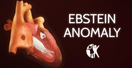 Ανωμαλία Ebstein
